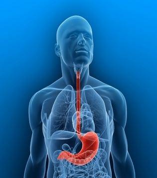Salute domani reflusso gastroesofageo esercizio fisico - Tumore esofago forum ...