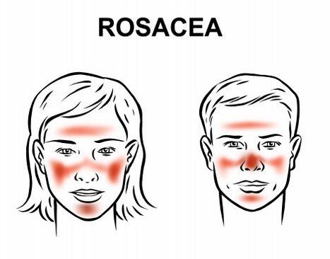 Rosacea: sintomi, cause e come curarla